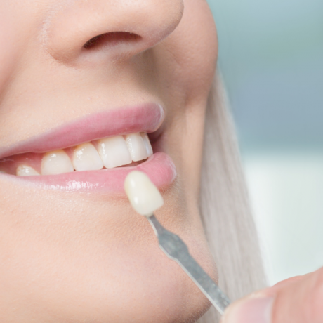 What Are Veneers and How Long Do They Last?